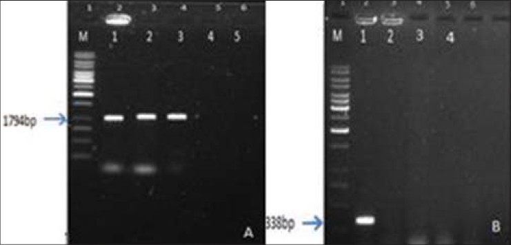 Figure 2: PCR analysis for hairy roots lines of <i>L. mucronatum</i>. (a) PCR analysis using the <i>rolA</i> and <i>rolB</i> genes specific primers. M: 1 Kb DNA Ladder (Fermantas), 1: Ri plasmid from <i>A. rhizogenes</i> strain 'A13' as