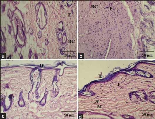 Figure 4: Histological examination showing control and Acorus calamus treated wound tissues on day 4 and day 8 of post wounding, respectively (H and E and Van Gieson's, ×20). On day 4, control showing loosely packed collagen with irregular epithelialization and less fibroblasts (a). Whereas, treated tissue showing new blood vessels formation and high fibroblasts with dense collagen deposition (b). On day 8, control depicts thin epithelial layer with less collagen (c) and treated shows complete epithelialization with regularly arranged dense collagen (d). Scale bar 50 ìm. BC: Blood capillaries; F: Fibroblast; IE: Incomplete epithelialization; E: Epithelialization; M: Macrophages