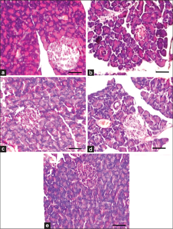 Figure 2: Histological alterations of pancreas in control and experimental groups of rats. Control rat pancreas (a) had intact, big and round clusters of islet cells surrounded by exocrine acini. Cardiovascular damage-induced (b) rats had dilated acini gaps, shrinked islet and reduced islet area. Kalpaamruthaa treated (c) rats had markedly reduced dilation of acini and high degree of islet area than <i>Semecarpus anacardium</i> treated (d) rats. Drug alone group of rats (e) had histological pattern similar that of control rats. Sections were visualized under light microscope at a magnification of × 200 (Scale bar - 100 µm)