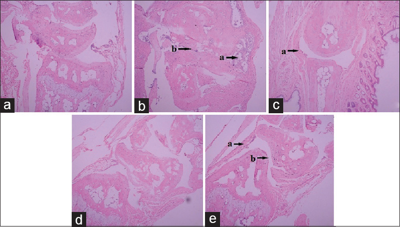Figure 3: Influence of Fu-Fang-Lu-Jiao-Shuang (FFLJS) on the histopathological change of ankle joint in collagen induced arthritis (CIA) mice. Fu-Fang-Lu-Jiao-Shuang inhibits the histological changes in the ankle joints of CIA mice. Paraffin sections of ankle joints were stained with H and E. (a) Nonimmunized mice showed normal articular cartilage, absence of damage in the synovium and open joint space. (b) CIA mice showed marked infiltration of inflammatory cells, narrow joint space with synovia hyperplasia. (c and d) CIA mice treated with FFLJS (125, 500 mg/kg) and (e) dexamethasone (3 mg/kg) showed less inflammatory cells infiltration, well preserved joint spaces and minimal synovia hyperplasia. (a) Infiltration of inflammatory cells; (b) cartilage hyperplasia and close articular cavity
