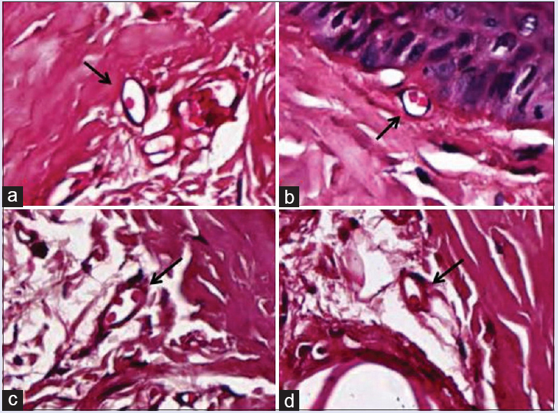 Figure 2: Photomicrographs of dermal capillaries (arrows) in the tails of (a) untreated normal rats, (b) normal rats treated with <i>Nigella sativa</i>, (c) untreated diabetic rats, and (d) diabetic rats treated with <i>Nigella sativa</i> after an 8-week experimental period. Periodic acid-Schiff staining (×40)