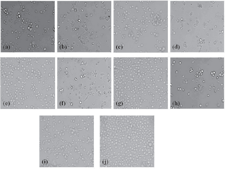 Figure 4: Phase contrast images of control, standard and test compounds in Thp-1 cells captured by light microscopy. (a). THP-1 monocytic cells. (b). THP-1 cells treated with PMA to induce monocyte to macrophage differentiation. (c). THP-1 cells treated with stigmasterol without PMA. (d). THP-1 cells + PMA with stigmasterol. (e). THP-1 cells treated with sitosterol without PMA. (f ). THP-1 cells + PMA with sitosterol. (g). THP-1 cells treated with lupeol without PMA. (h). THP-1 cells + PMA with lupeol. (i). THP-1 cells treated with piroxicam (standard) without PMA. (j). THP-1 cells + PMA with piroxicam.