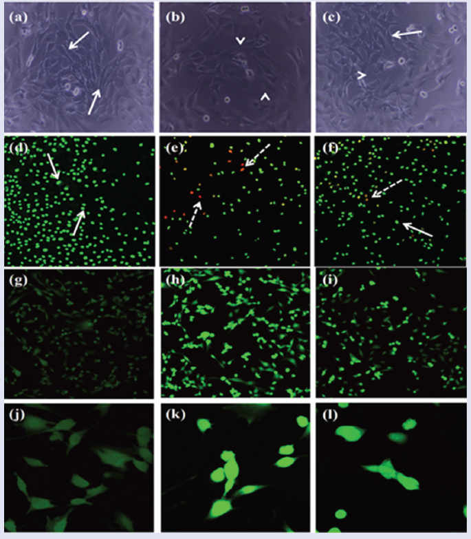Figure 3: Representative phase contrast images of muscle precursor cells (a) unexposed control cells, (b) exposed to LPS (100 µg/ml), (c) exposed to LPS (100 µg/mL), pre-treated with CAP (50 µM). (White arrow indicates the undamaged cells; white arrow head indicates damaged rounded structures). Representative confocal images of myoblasts (d) unexposed control (e) exposed to LPS (f) exposed to LPS (100 μg/mL) and pretreated with CAP (50 µM). Dead cells are labeled by EB and have red nuclei. Live cells are labeled by AO and have green nuclei. (Dotted arrow indicates the dead cells while arrow indicates the living cells). Microscopic images [Figure 3]g, h, i magnification: ×40; [Figure 3]j, k, l, magnification: ×100) show the intracellular ROS in myoblastcells. AO, ; CAP, Capsaicin; EB, ; LPS, lipopolysaccharide; ROS, reactive oxygen species.