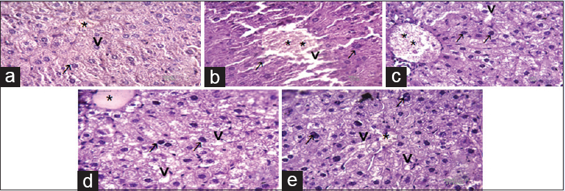 Figure 9: (a-e) Photomicrograph of liver section of mice showing the changes in cellular organization after three week of experiment (H and E), scale bar = 40 μm abbreviation marks- * (stick) central vein, . (open arrow) nucleus, . (arrow) sheet of hepatocytes, .(barred arrow) sinusoids. (a) Normal control group showed normal central vein, sheet of hepatocytes, and healthy nucleus are present, it is participated in normal glycogenolysis and gluconeogenesis synthesis therefore maintain glucose level and enzyme level- catalase, serum glutamic oxaloacetic transaminase, serum glutamic pyruvic transaminase, and glucose-6-phosphate dehydrogenase inside the body. (b) Diabetic group representing destruction of central vein, de-leafing of sheet of hepatocyte and sinusoids cells therefore its loosed controlling power of glucose liver synthesis and increased glucose level and increased serum glutamic oxaloacetic transaminase and serum glutamic pyruvic transaminase inside the liver. (c) Insulin treated diabetic group appears almost similar to normal control mice but in central vein showed regaining of normal structure therefore its indicate insulin help to control of glucose synthesis and normalizing glucose levels. (d) Normal control treated with mulberry S-1708 which similar to control groups in cellular organization and reporting that S-1708 has no any side effect. (e) S-1708 Mulberry leaf treated with diabetic group is showing regain of cells structure such as central vein, nucleus, sheet of hepatocytes, sinusoids, after treatment of mulberry and performing good controlling of glucose level in blood and help insynthesis of glycogenolysis and gluconeogenesis inside the liver of mice