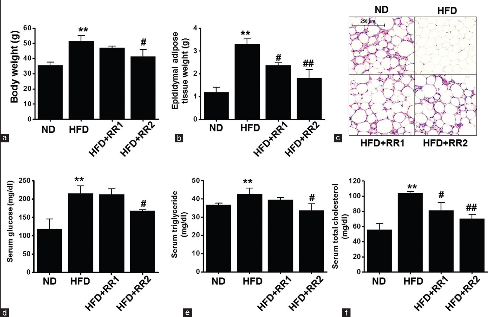 Figure 1: <i>Rehmanniae</i> radix prevents high-fat diet-induced obesity and ameliorates serum biochemical parameters. C57BL/6 mice were fed a normal diet or high-fat diet for 6 weeks, and a low (<i>Rehmanniae</i> radix 1, 250 μg/mL) or high (<i>Rehmanniae</i> radix 2, 500 μg/mL) dose of <i>Rehmanniae</i> radix was administered to the high-fat diet-fed mice for an additional 8 weeks. (a) Final body weight. (b) Final epididymal adipose tissue weight. (c) H and E staining (scale bar, 250 μm). (d) Serum glucose level. (e) Serum triglyceride level. (f) Serum total cholesterol level. The data are presented as the mean ± standard errors of means for 6 mice. **<i>P</i> < 0.01 vs. normal diet fed mice. <sup>#</sup><i>P</i> < 0.05, <sup>##</sup><i>P</i> < 0.01 versus high-fat diet-fed mice alone