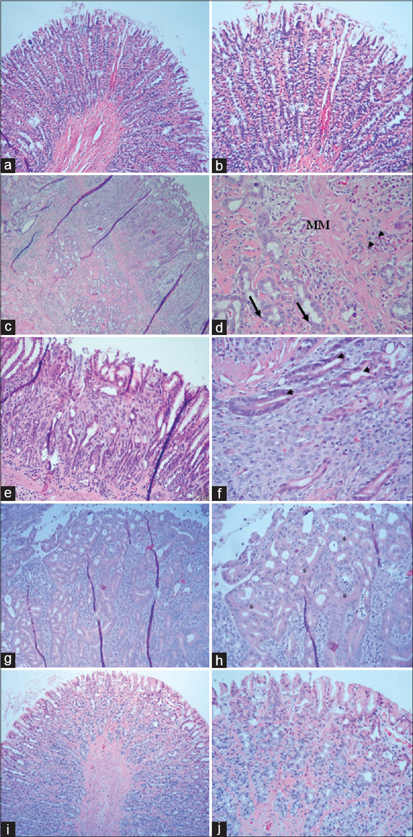 Figure 7: Histopathological changes of rat gastric tissue in all experimental groups. (a and b) CO group; (c-h) <i>Hp +</i> MNU group; (i and j) <i>Hp</i> + MNU + Cur group (H and E, ×40, ×100). Arrows denote the invasion of malignant cuboidal epithelial cells to submucosal layer. Arrowheads denote dysplastic gland. Asterisks denote ADC of gastric mucosa. MM: Muscularis mucosal layer; CO: Control rats; <i>Hp</i> + MNU: <i>Helicobacter pylori</i> infection and <i>N</i>-methyl-<i>N</i>-nitrosourea administration; <i>Hp</i> + MNU + Cur: <i>H. pylori</i> infection and <i>N</i>-methyl-<i>N</i>-nitrosourea administration supplemented with 60 mg/kg curcumin for 30 weeks; ADC: Adenocarcinoma
