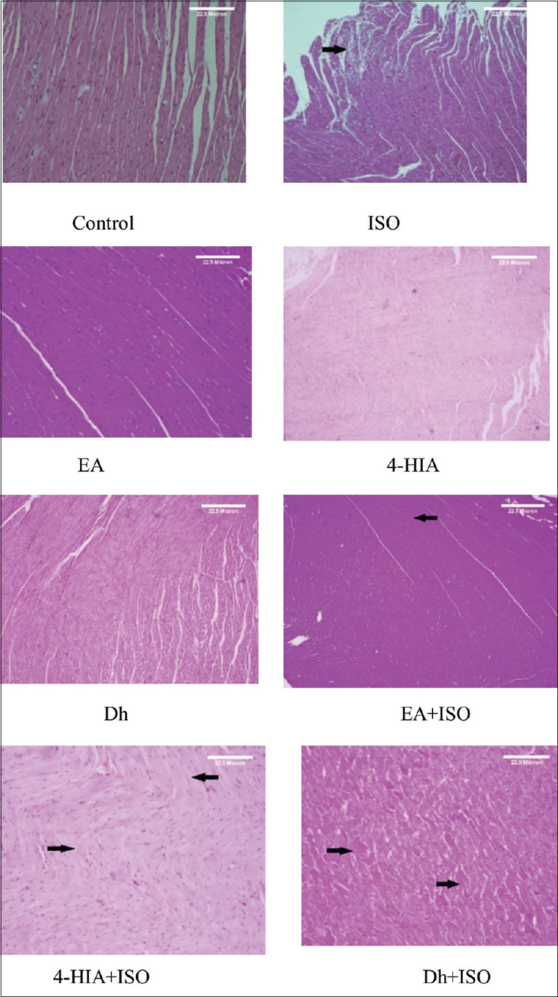Figure 3: Photomicrographs of histopathological changes of LV of control, supplemented, and ISO-treated rats. Control, ISO, EA, 4-HIA, <i>Decalepis hamiltonii</i> extract, EA + ISO, 4-HIA + ISO, and <i>Decalepis hamiltonii</i> + ISO. Tissues were stained with hematoxylin and eosin, visualized under a light microscope at ×100. Arrow indicates infiltration of inflammatory cells and myocardial necrosis. LV: Left ventricle; ISO: Isoproterenol; EA: Ellagic acid; 4-HIA: 4-hydroxy isophthalic acid
