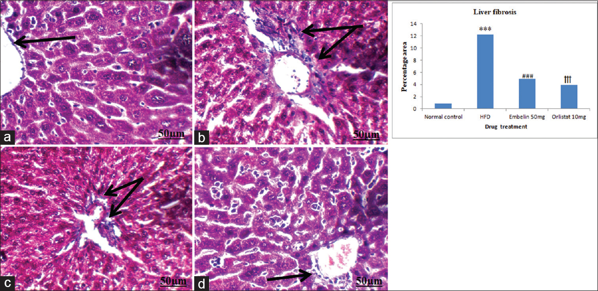 Figure 3: Photomicrographs<b></b>  of liver tissue stained with Masson's trichrome. (a) Mice treated with normal chow diet showing normal liver cells. (b) Mice treated with high fat diet for a period of 8 weeks showing blue colour around the portal area. (c) Treatment of embelin (50 mg/kg/day, p.o.) from 5<sup>th</sup> to 8<sup>th</sup> week in high fat diet fed mice showing less colourization around the portal area. (d) Treatment of orlistat (10 mg/kg/day, p.o.) from 5<sup>th</sup> to 8<sup>th</sup> week in high fat diet fed mice showing more less colourization around the portal area as compare to embelin. Data are expressed as mean ± standard error of mean (<i>n</i> = 6 animals per group). Significance difference was determined by one-way analysis of variance followed by Tukey's multiple comparison test. ***<i>P</i> < 0.001 high fat diet versus normal control;<sup>###</sup><i>P</i> < 0.001 embelin 50 mg versus high fat diet;<sup>†††</sup><i>P</i> < 0.001 orlistat 10 mg versus high fat diet