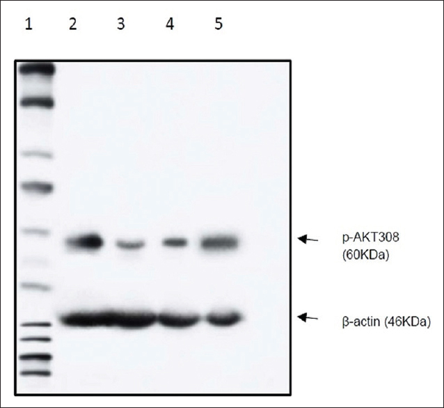 Figure 7: P-AKT protein expression in western blot. Lane 1 – Marker lane; Lane 2 – Normal control; Lane 3 – Acetaminophen; Lane 4 – N-acetylcysteine; Lane 5 – <i>Terminalia arjuna</i> (500mg/kg)
