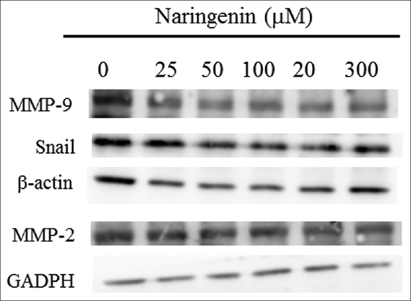 Figure 4: Naringenin alters the migration-related proteins' expression. 143B cells were treated with indicated concentration of naringenin for 24 h. The cell lysates were subjected to Western blot analysis using specific antibody. Data represented one of the three independent experiments